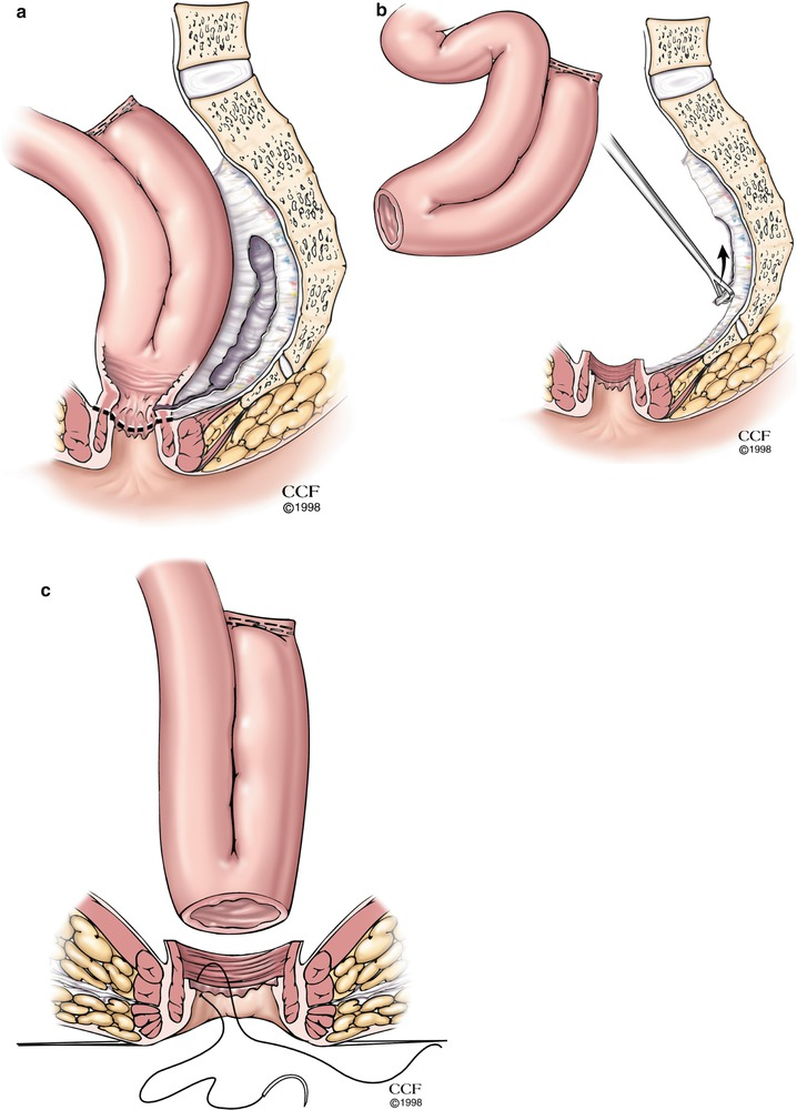 Ileal Pouch Complications | SpringerLink