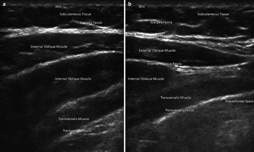 Abdominal Wall Anatomy Pathology And Intervention Springerlink