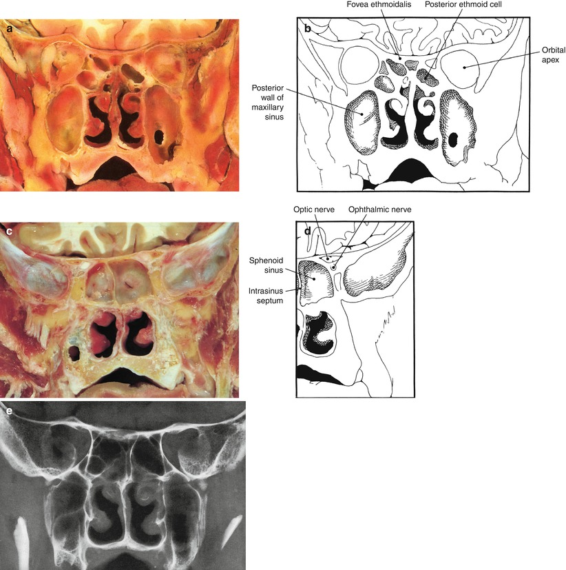 Anatomy of the Nose and Paranasal Sinuses | SpringerLink