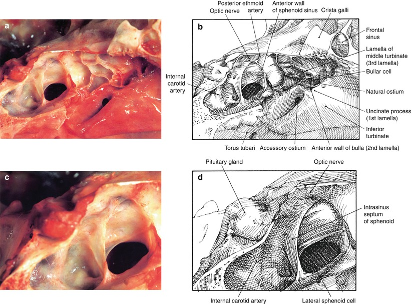 Anatomy Of The Nose And Paranasal Sinuses Springerlink
