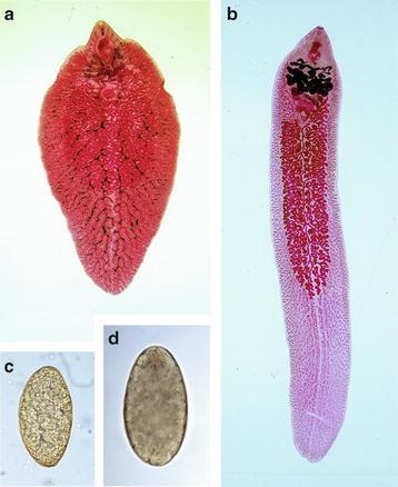 Esperalis szájszag A helmintára jellemző fascioliasis