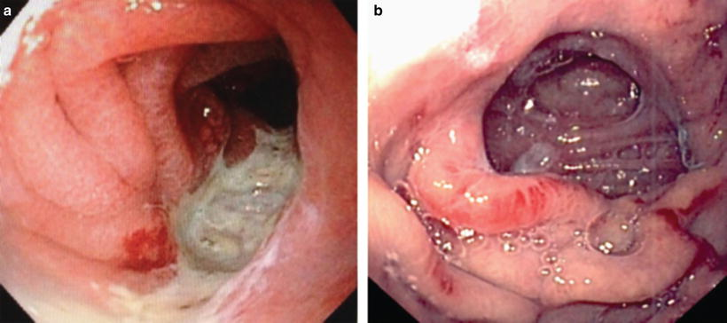 The Role Of Endoscopy In Bariatric Surgery Springerlink