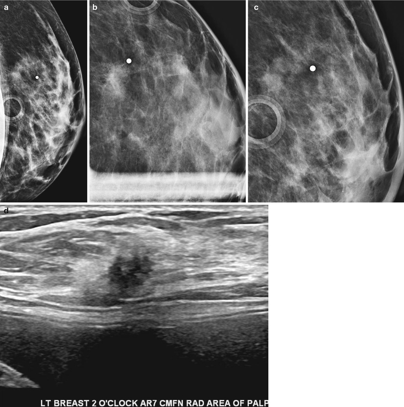 Mammographic Signs of Breast Cancer | SpringerLink