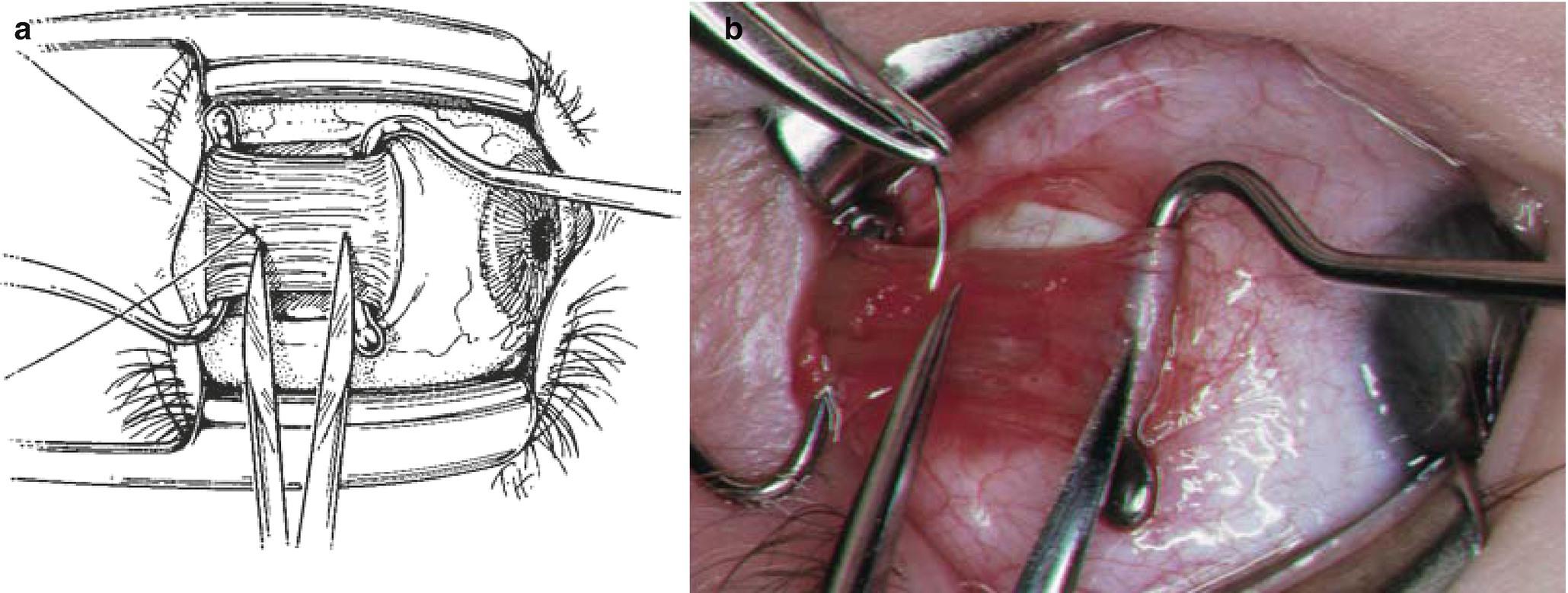 Rectus Muscle Tightening Procedures | SpringerLink