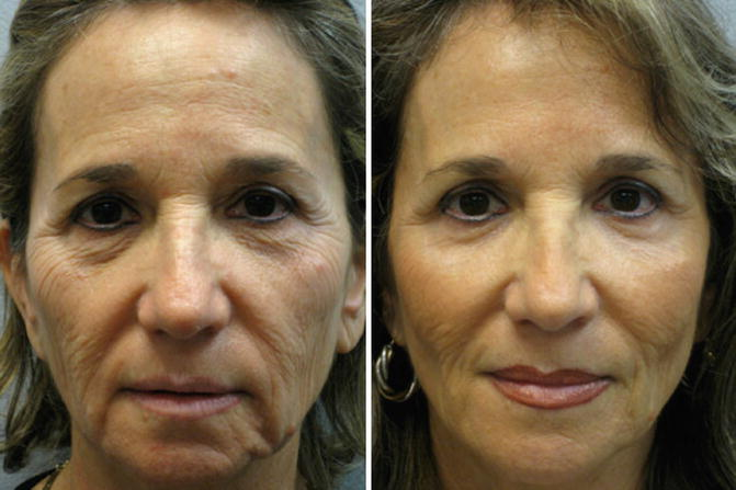 Ablative Fractional Laser Skin Resurfacing | SpringerLink
