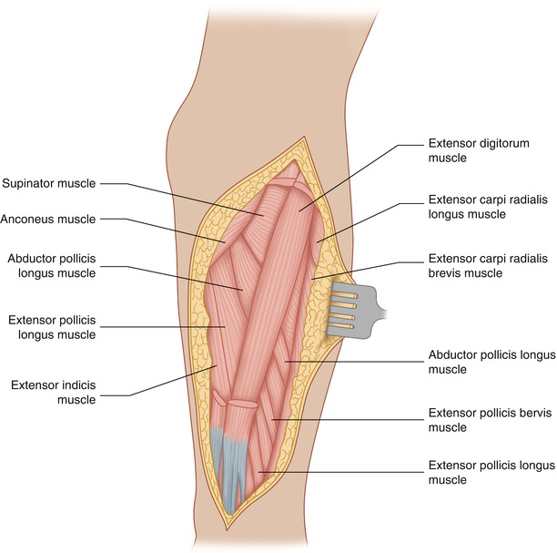 Tumor In The Dorsal Aspect Of The Forearm Springerlink