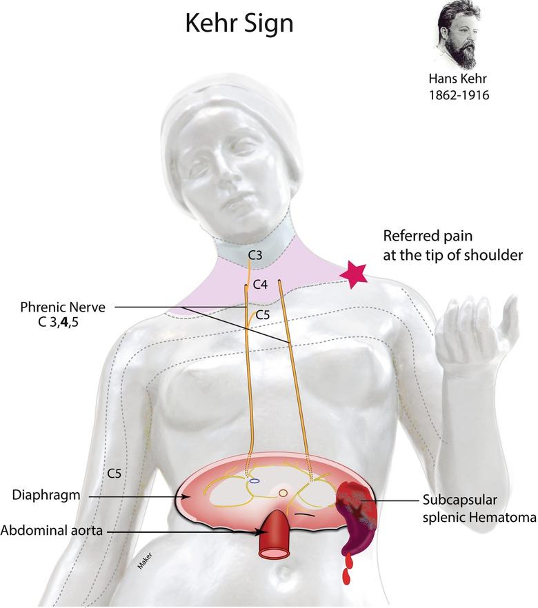 Abdominal Pain Springerlink