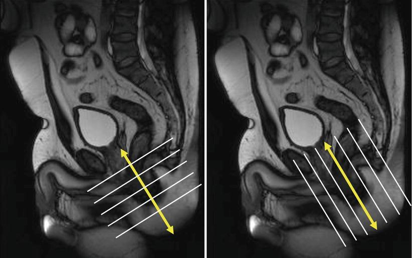MRI for Perianal Fistula | SpringerLink