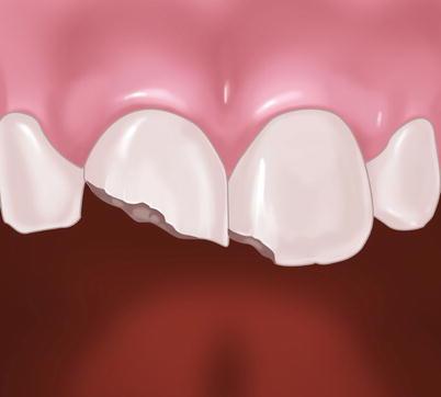 Fractured Tooth | SpringerLink
