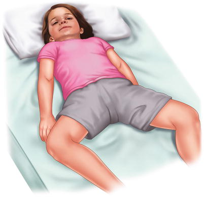 manual reduction of abdominal hernia  springerlink