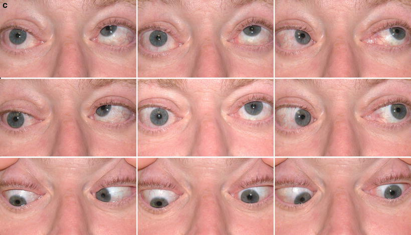 Management Of Strabismus In Thyroid Eye Disease Springerlink
