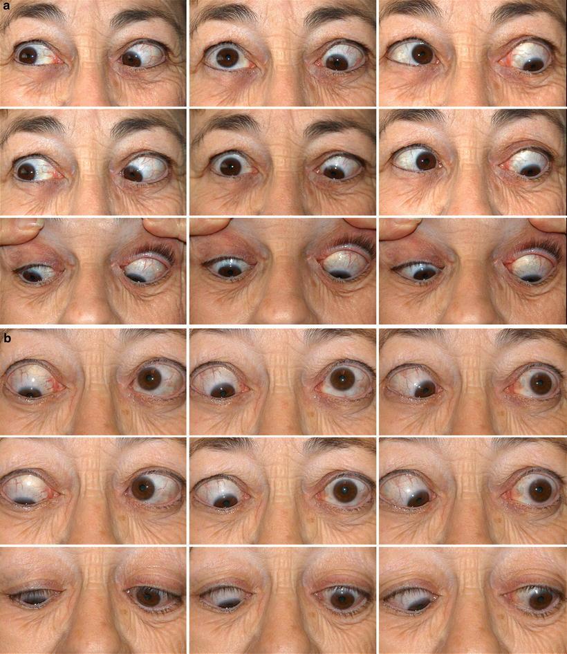 Management Of Strabismus In Thyroid Eye Disease Springerlink