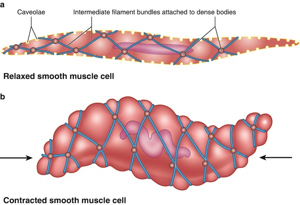 The Neurogenic Bladder And Hypertonic Pelvic Floor Muscle