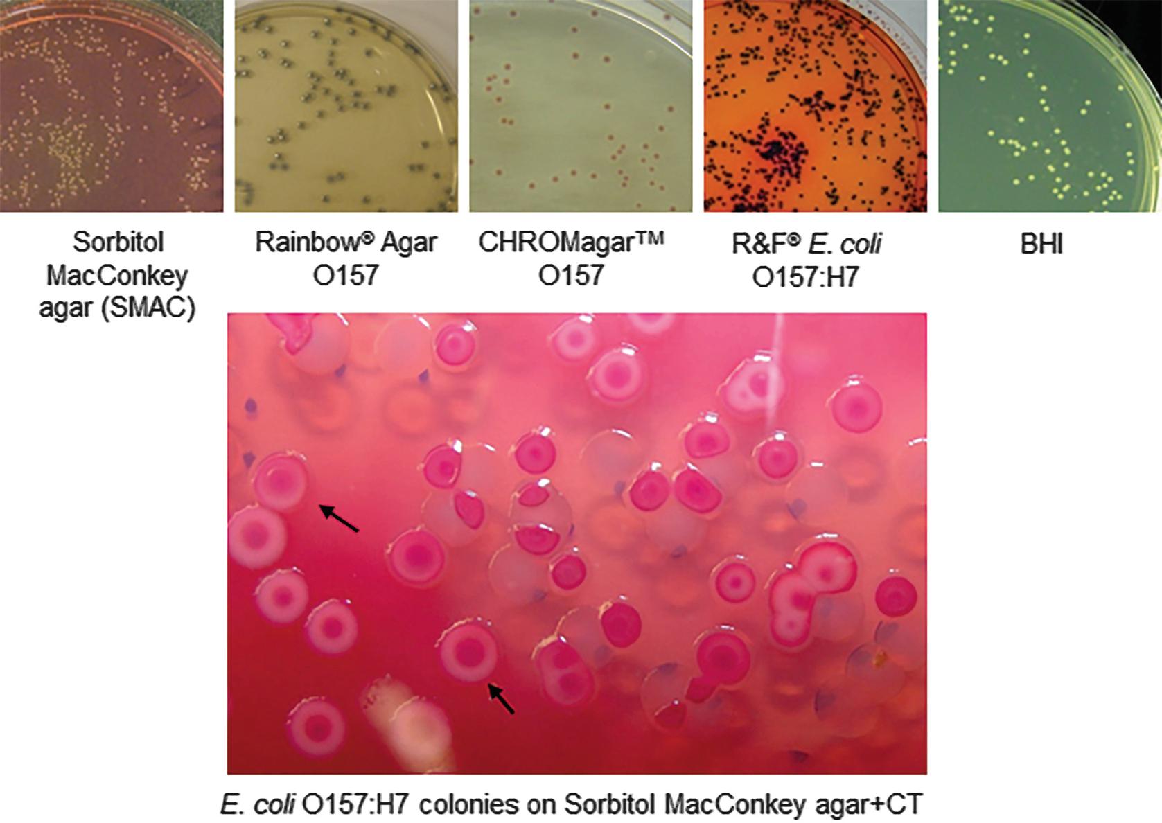 e.coli o157 sorbitol macconkey
