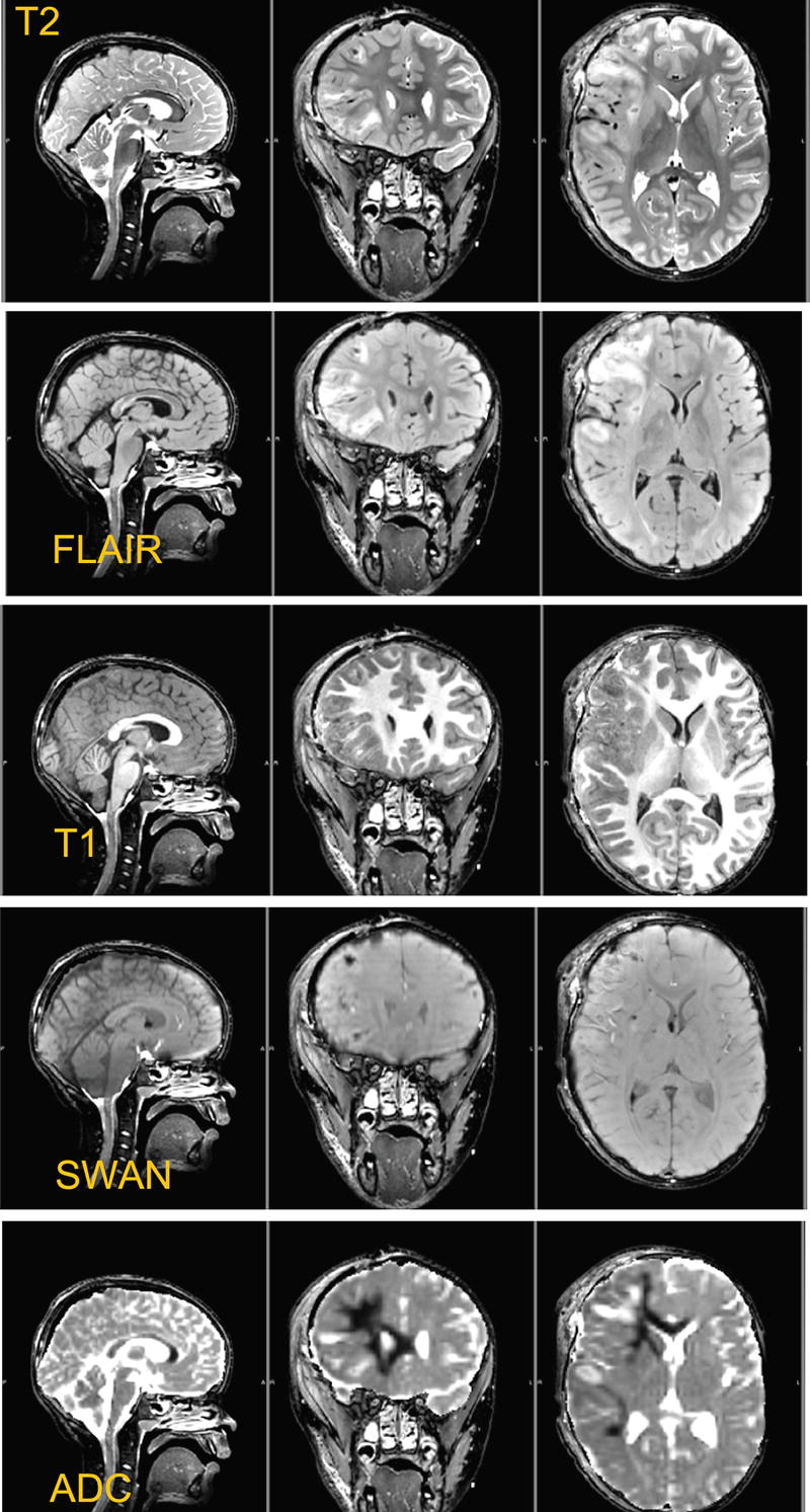 Advanced Neuroimaging Methods in Traumatic Brain Injury