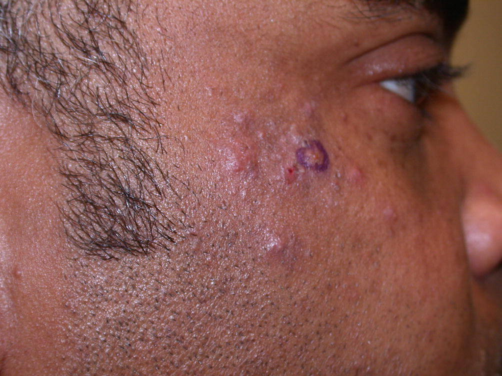 Cutaneous Lesions That Mimic Infection In Transplant
