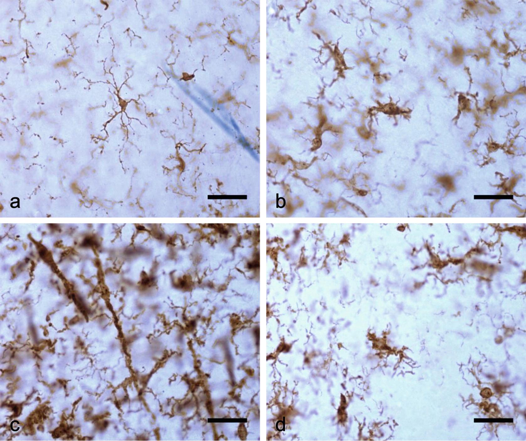 Morphology of Microglia Across Contexts of Health and Disease ...