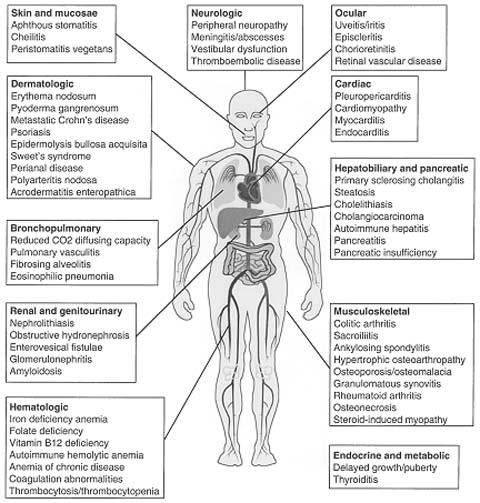 Extraintestinal Manifestations Of Inflamamtory Bowel Disease Springerlink