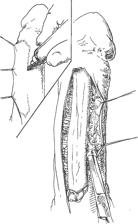 Penile Skin Flaps for Urethral Reconstruction   SpringerLink