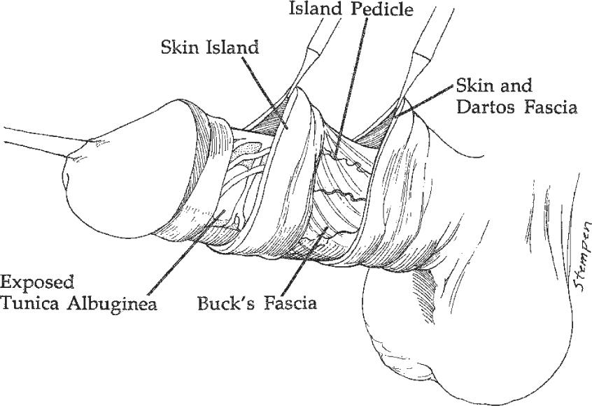 Penile Skin Flaps for Urethral Reconstruction | SpringerLink