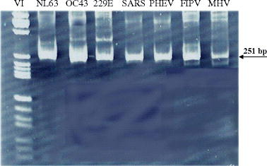 A pancoronavirus rt pcr assay for detection of all known open image in new window fandeluxe Choice Image