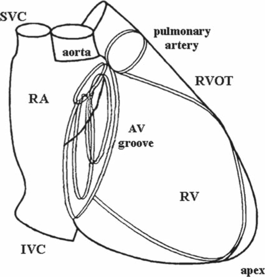X Ray Anatomy Of The Heart