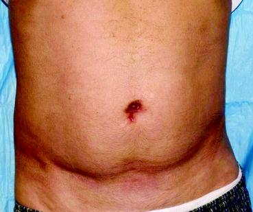 Less Radical Prostatectomy Springerlink