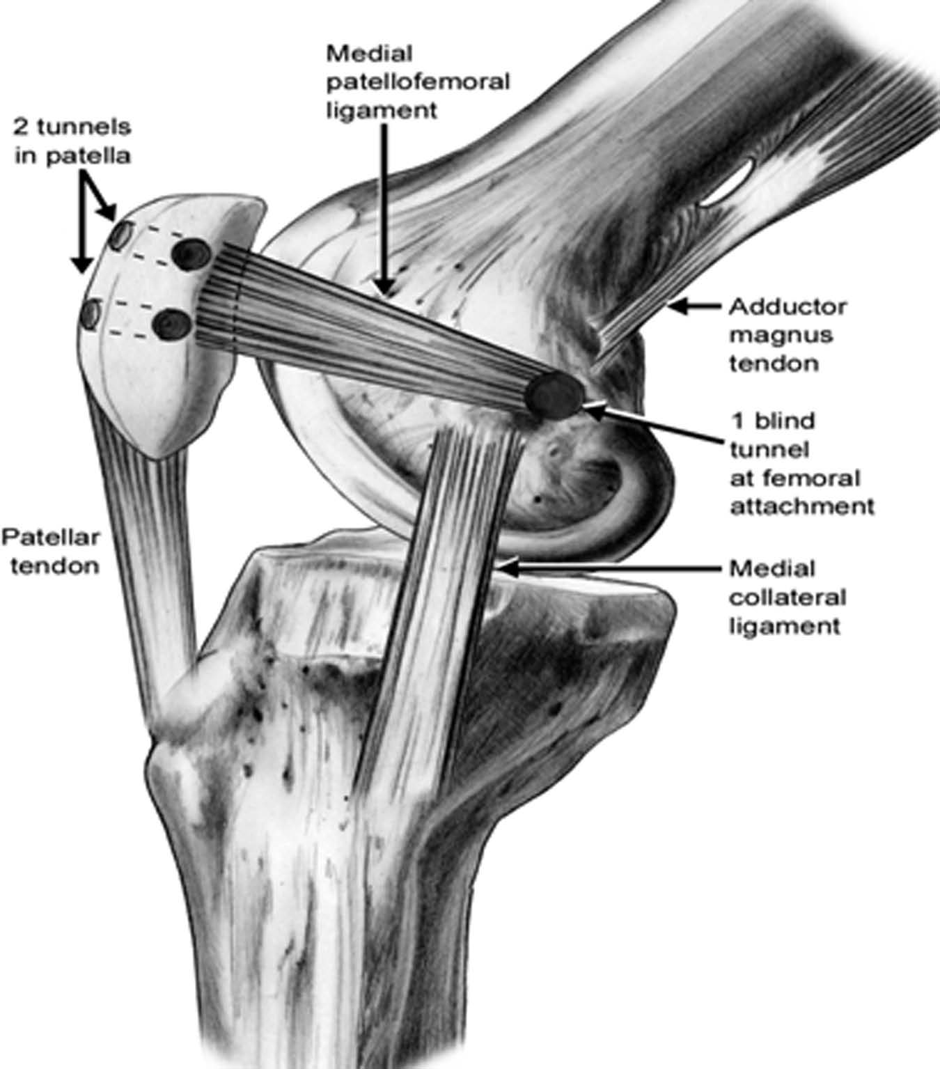 Avoiding And Managing Complications In Patella Surgery Springerlink