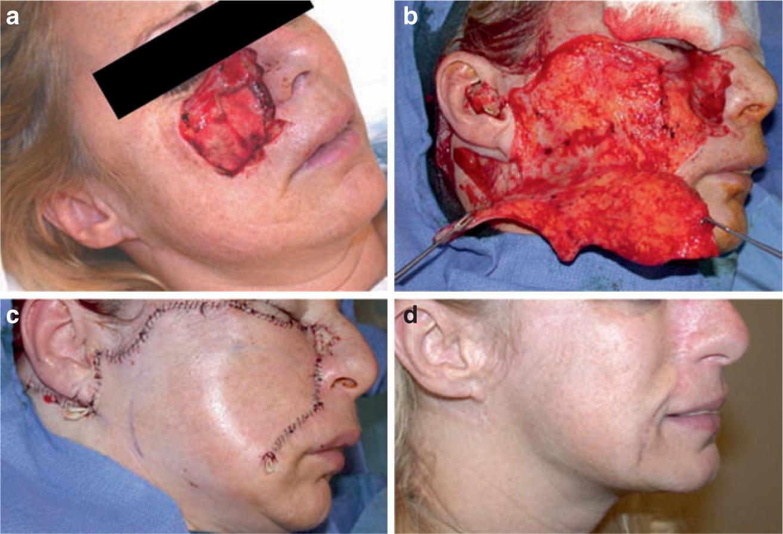 facial-lacerations-repair-emedicine-lindsay-lohan-sex-tape-free-view