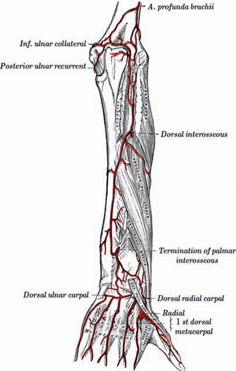 Chronic Arterial Ischemia of the Upper Extremity: Diagnosis ...
