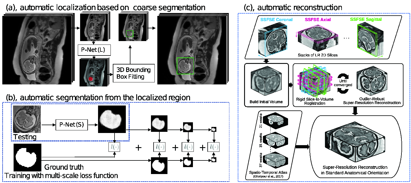 An Automated Localization, Segmentation and Reconstruction ...