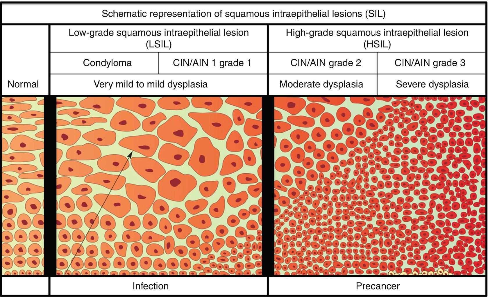 hogyan kezelik az emberi papilloma vírust a férfiaknál humán papillomavírus q