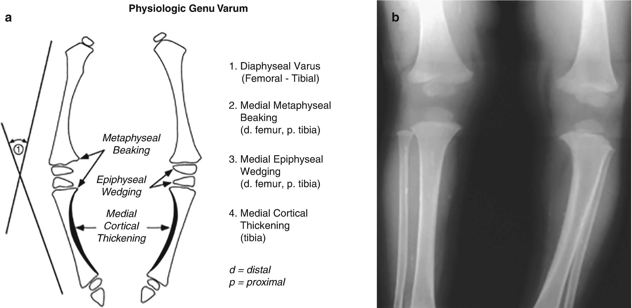 Developmental Disorders of the Knee   SpringerLink