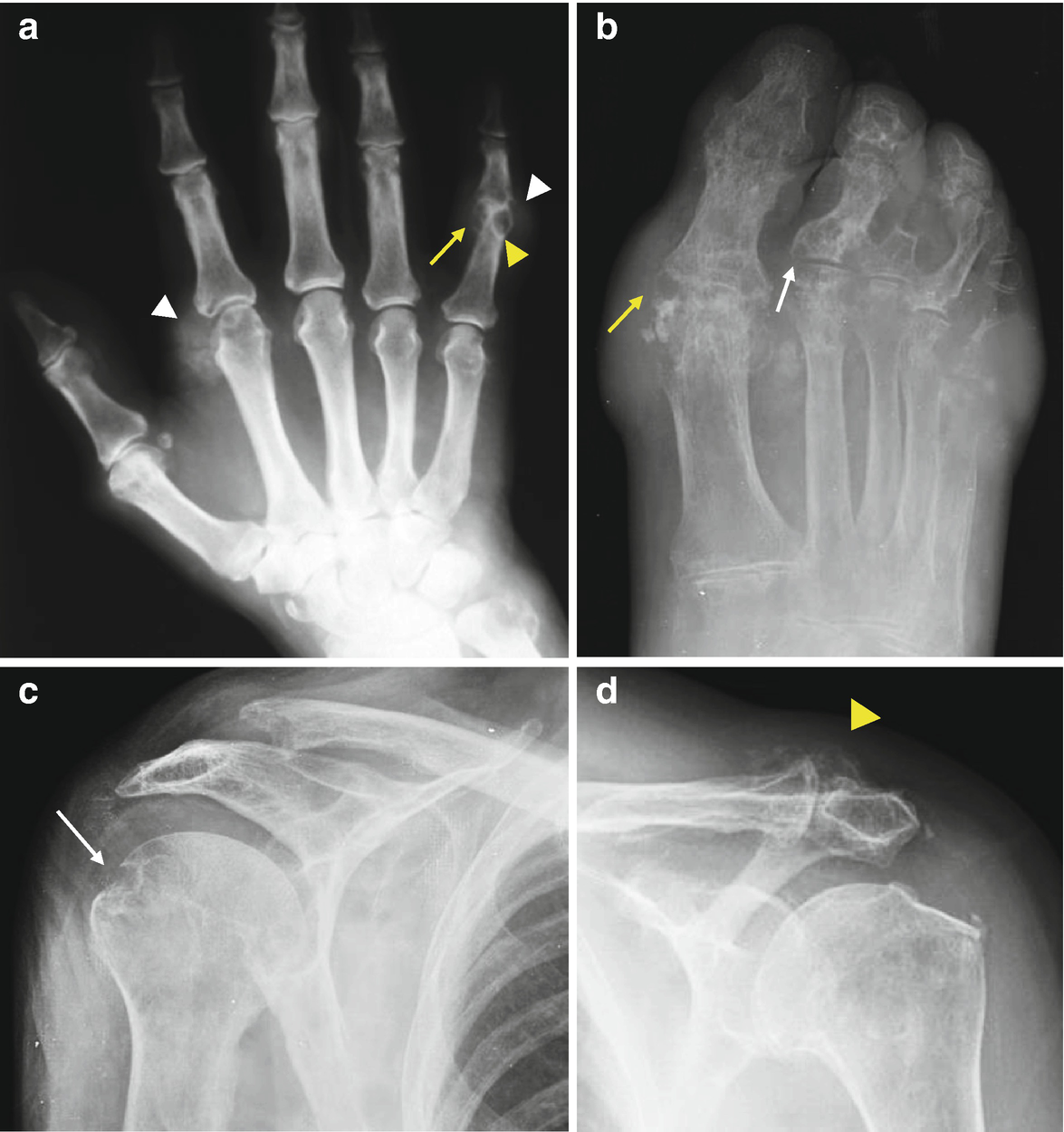 Crystal Arthropathies   SpringerLink
