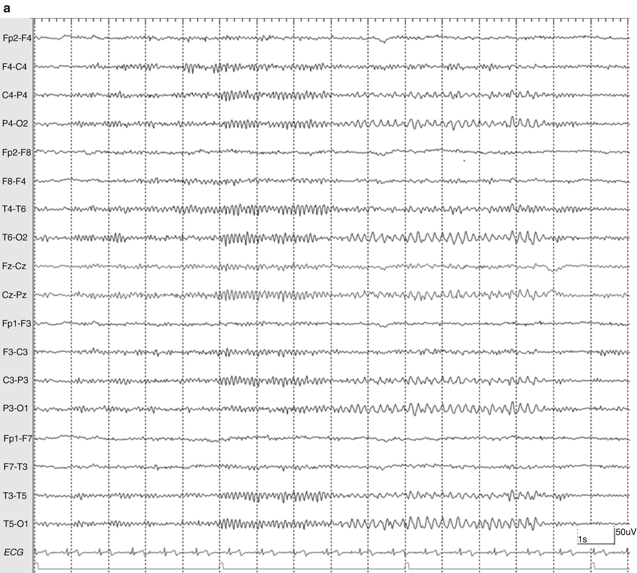 Normal Variants and Unusual EEG Patterns | SpringerLink