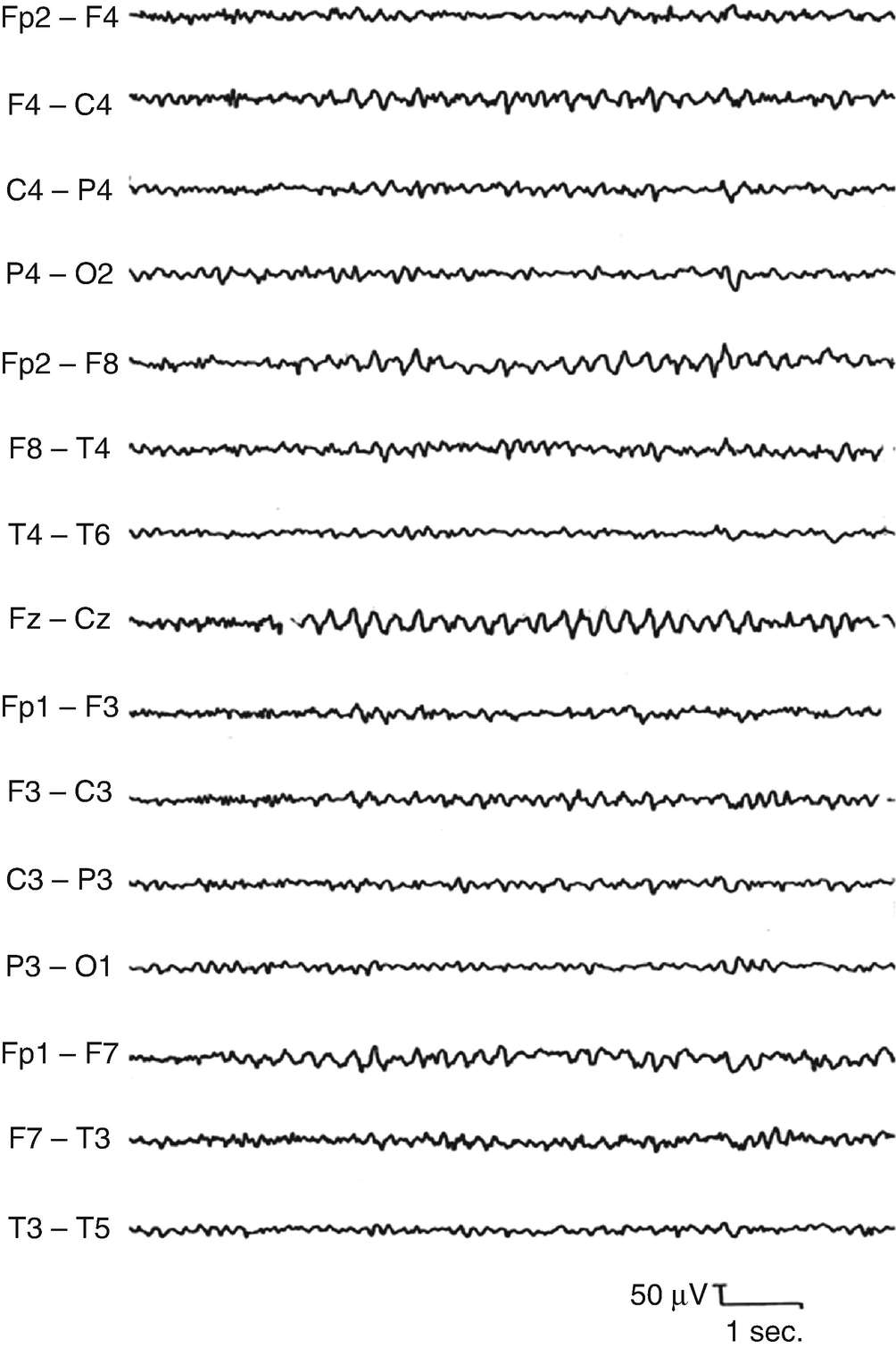 Normal Variants and Unusual EEG Patterns | SpringerLink