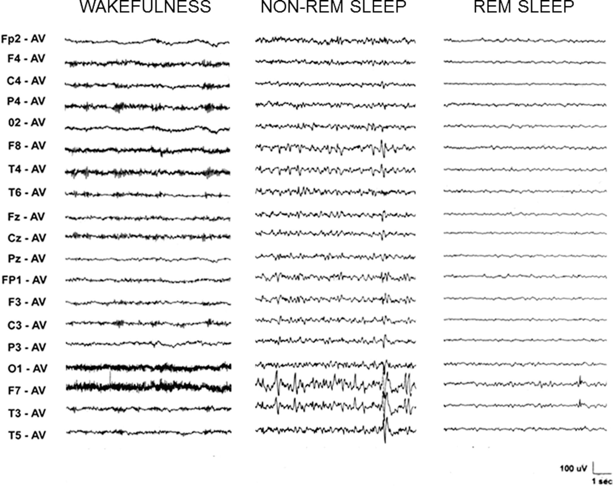 Non-age-Related Focal Epilepsies | SpringerLink