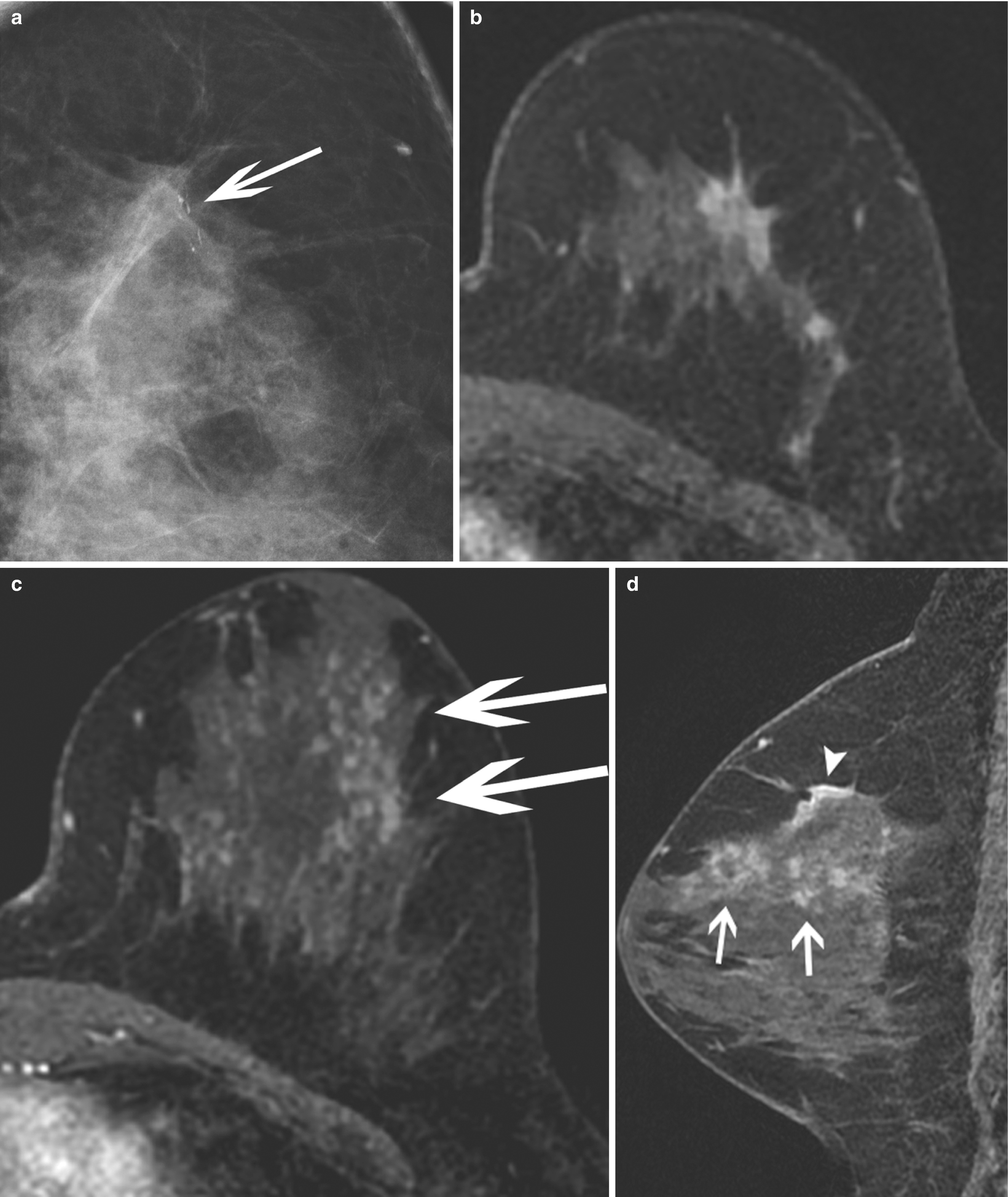 Breast Imaging and Image-Guided Biopsy Techniques | SpringerLink