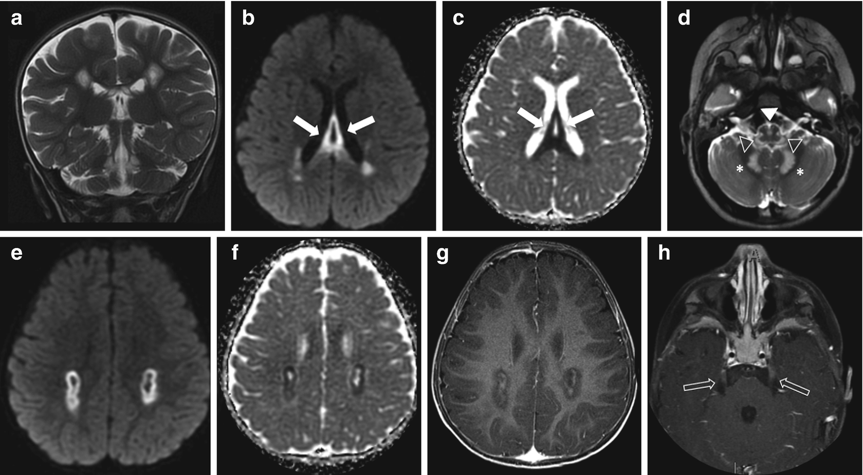 Neuroimaging Findings in Primary Mitochondrial Cytopathies