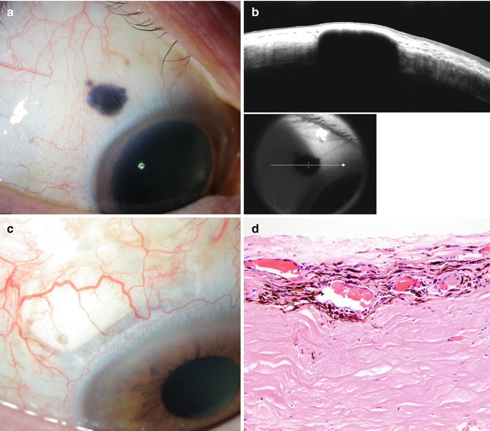 Conjunctival and Corneal Tumors: Benign Epidermal and