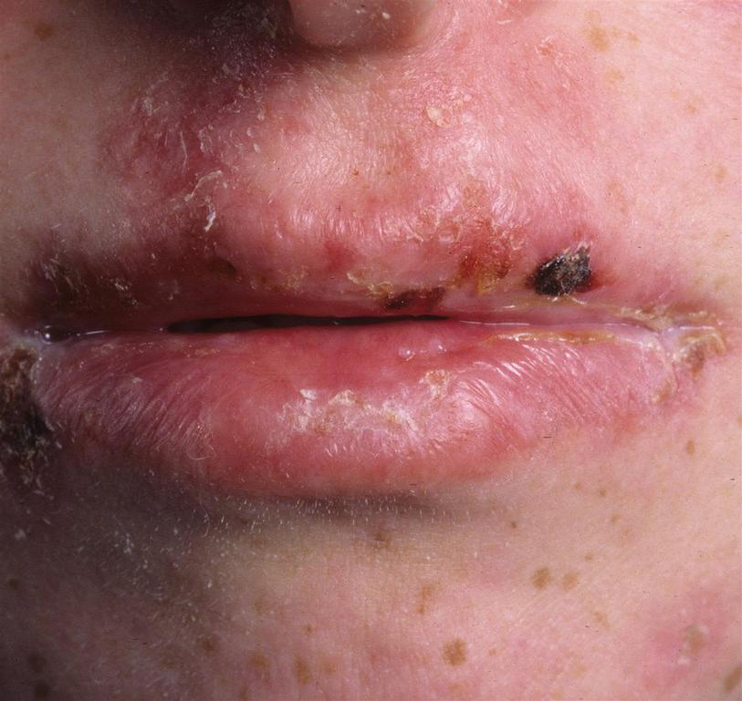 Oral Signs Of Genetic Disease Springerlink