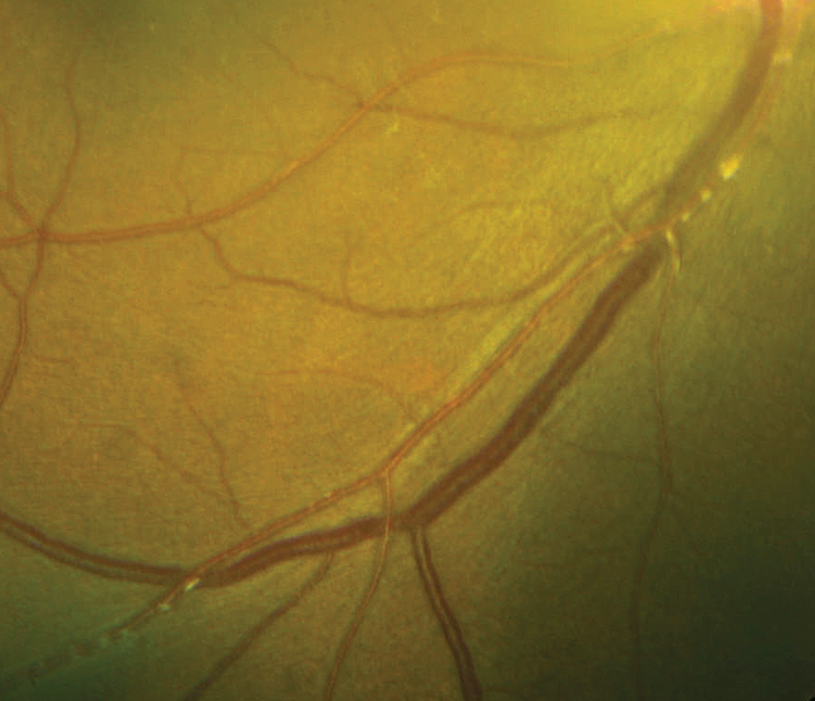 Diagnosis and Management of Ocular Inflammatory Disease