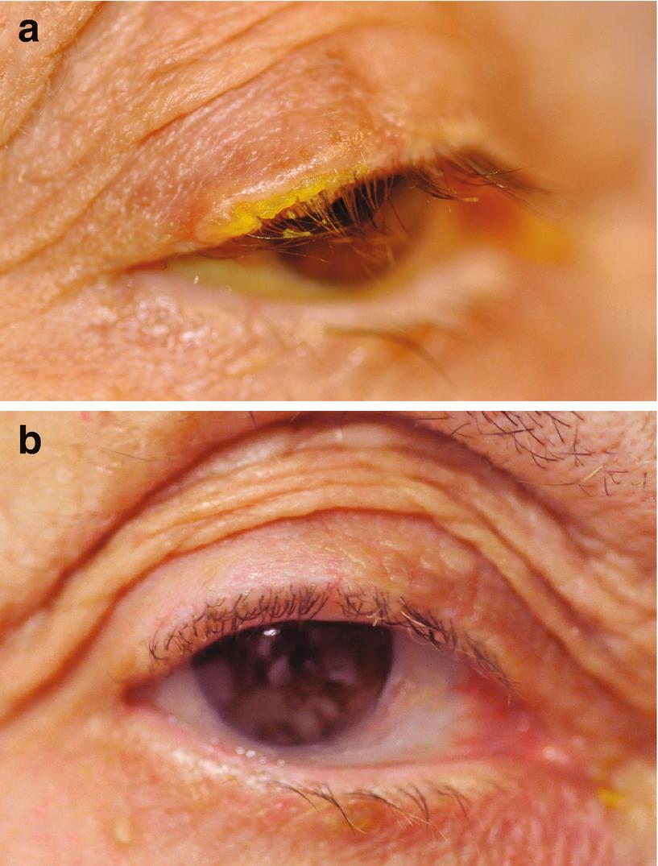 Eyelid Lesions | SpringerLink