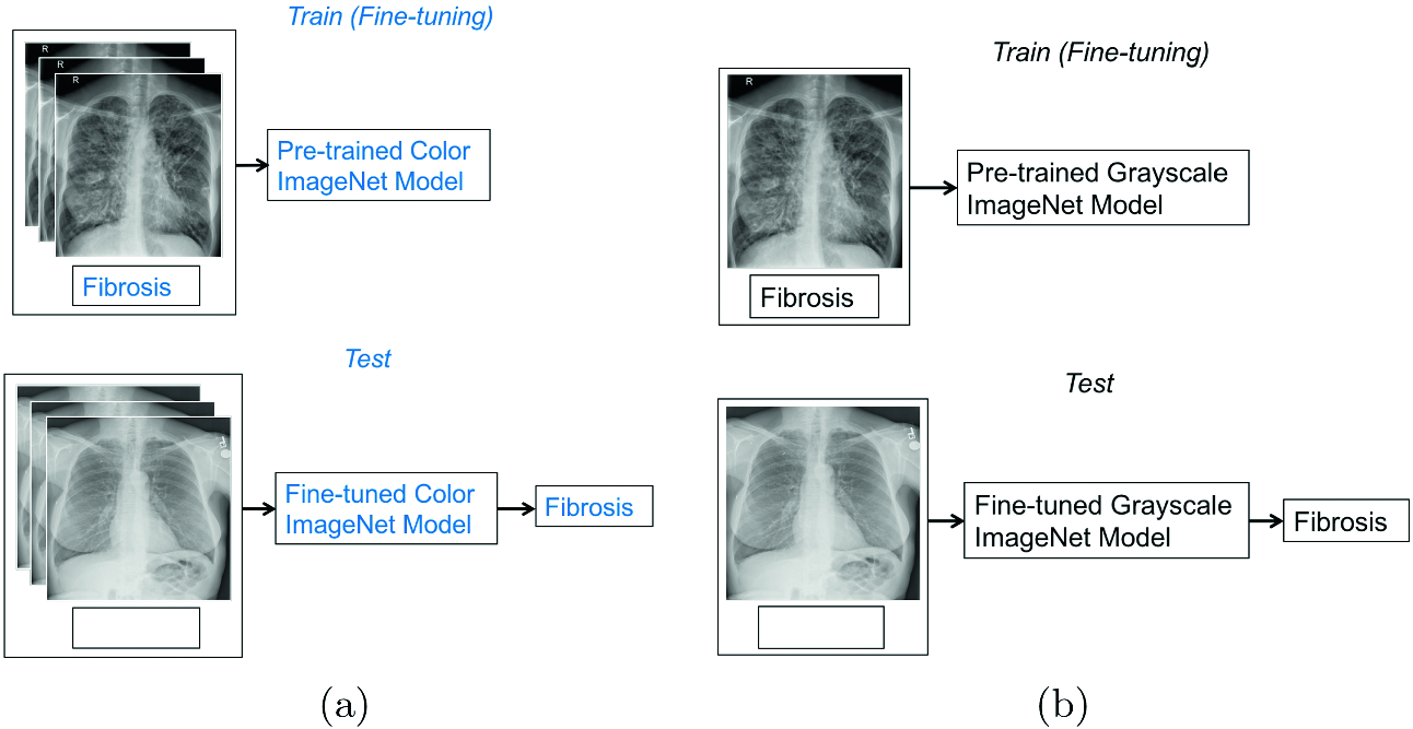 Pre-training on Grayscale ImageNet Improves Medical Image