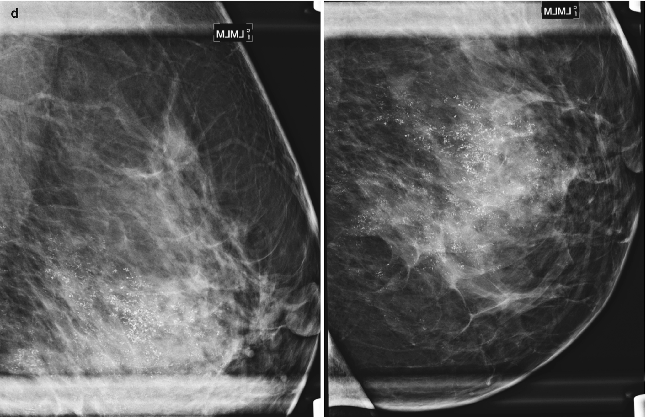 Diagnosis and Staging of Breast Cancer: When and How to Use