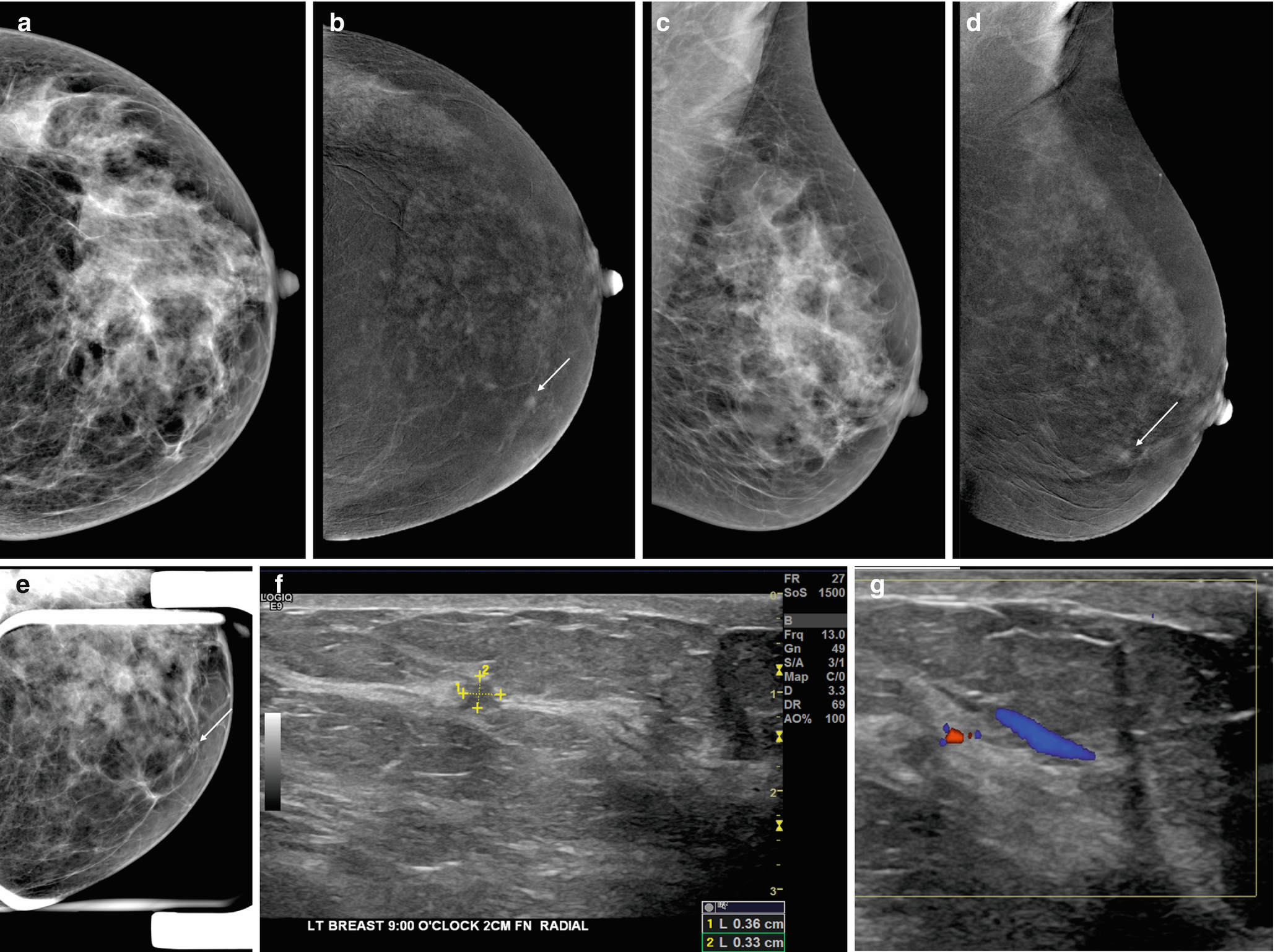 Diagnosis And Staging Of Breast Cancer When And How To Use