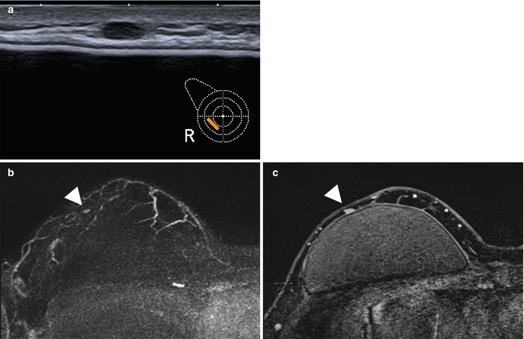 Follow Up Of Patients With Breast Cancer Imaging Of Local