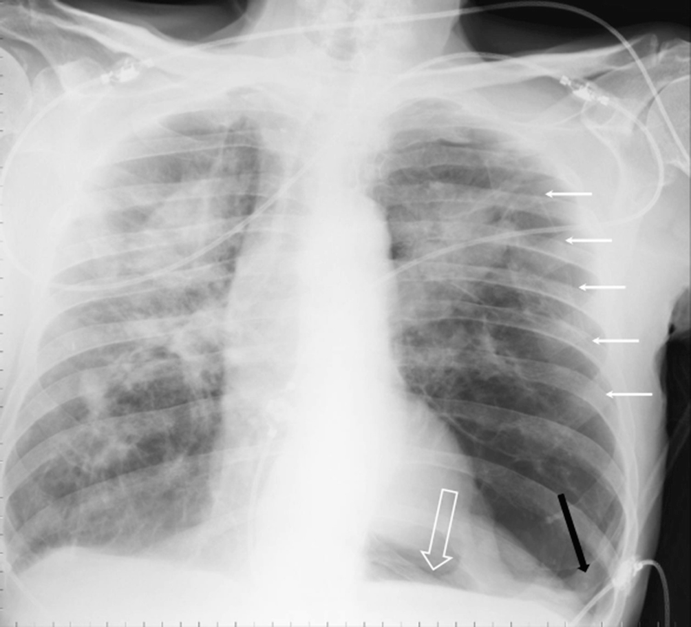 Missed Lung Lesions: Side-by-Side Comparison Of Chest