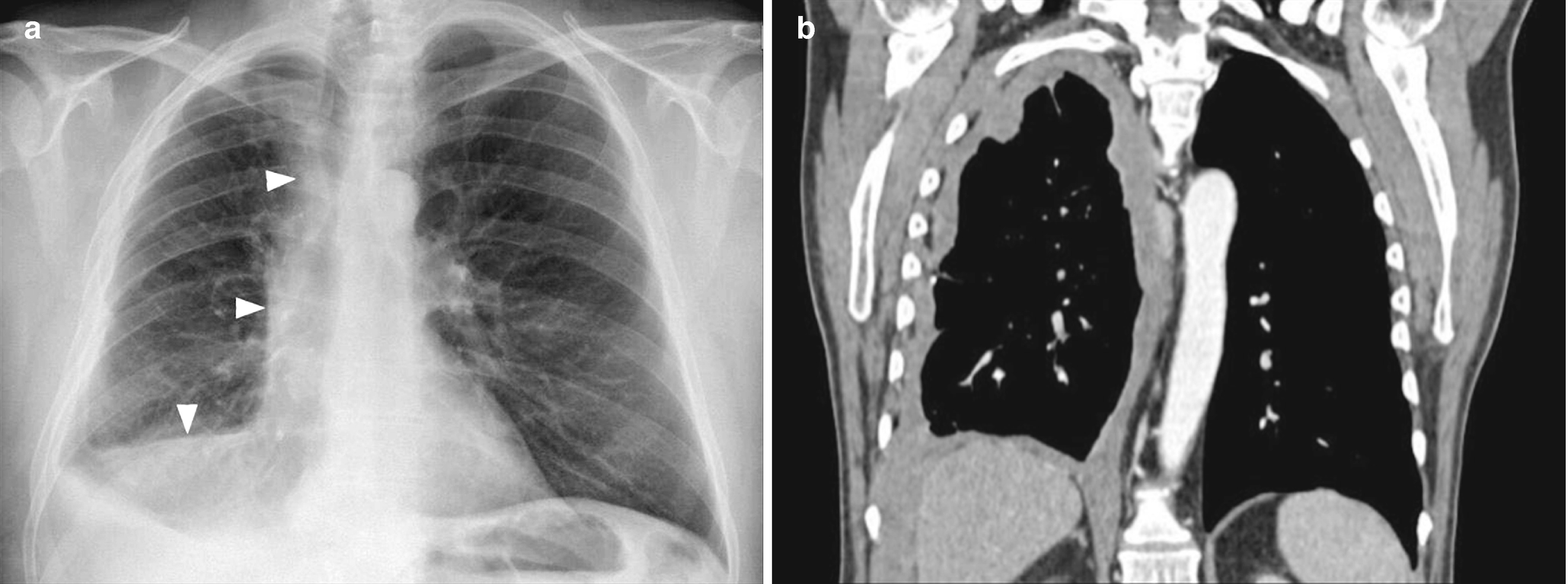 Diseases of the Chest Wall, Pleura, and Diaphragm | SpringerLink