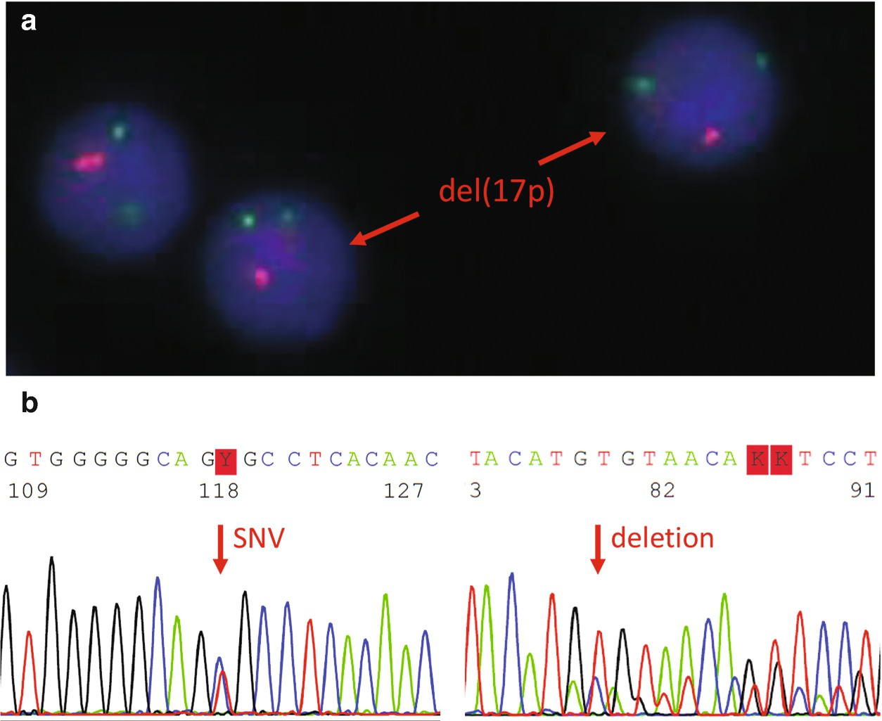 CLL with Del (17p)/TP53 Mutation | SpringerLink